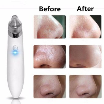 Microdermabrasion Vacuum Suction Pore Cleaner Comedo Blackhead Remove Machine White - intl Price Philippines